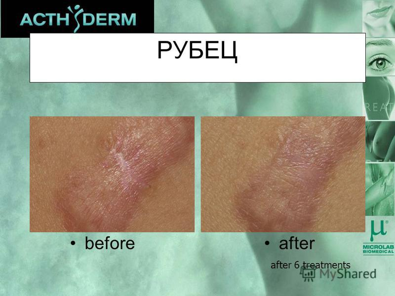 РУБЕЦ afterbefore after 6 treatments