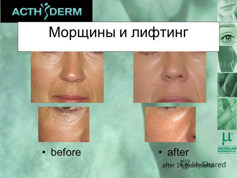 Морщины и лифтинг afterbefore after 14 treatments