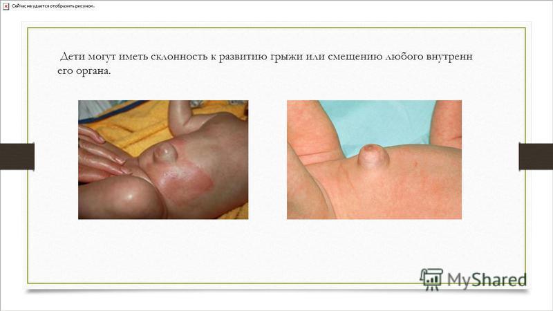 Дети могут иметь склонность к развитию грыжи или смещению любого внутреннего органа.