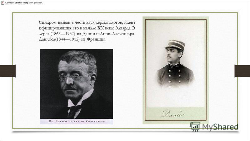 Синдром назван в честь двух дерматологов, идент инфицировавших его в начале XX века: Эдварда Э лерса (18631937) из Дании и Анри-Александра Данлоса(18441912) из Франции.
