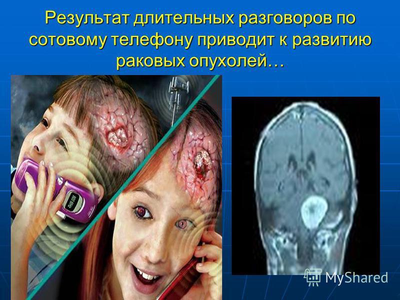 Результат длительных разговоров по сотовому телефону приводит к развитию раковых опухолей…