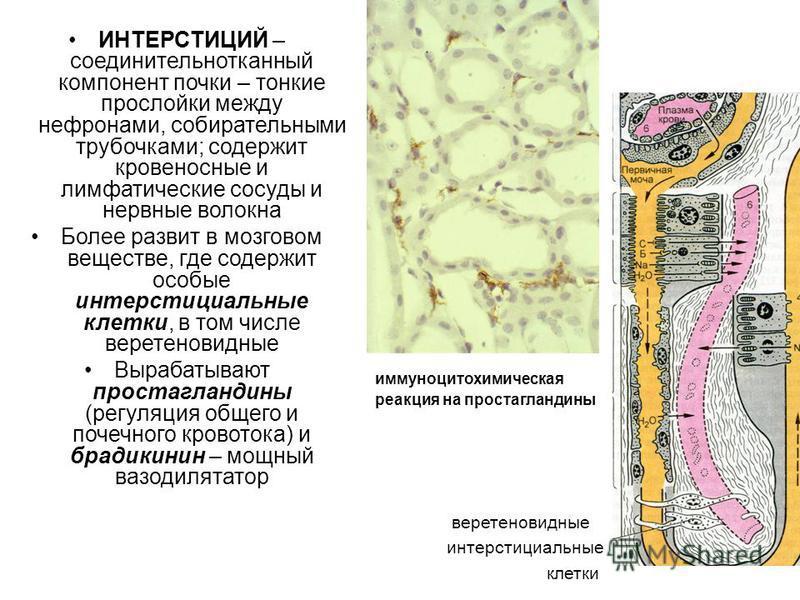 ИНТЕРСТИЦИЙ – соединительнотканный компонент почки – тонкие прослойки между нефронами, собирательными трубочками; содержит кровеносные и лимфатические сосуды и нервные волокна Более развит в мозговом веществе, где содержит особые интерстициальные кле