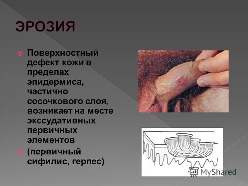 Поверхностный дефект кожи в пределах эпидермиса, частично сосочкового слоя, возникает на месте экссудативных первичных элементов (первичный сифилис, герпес)