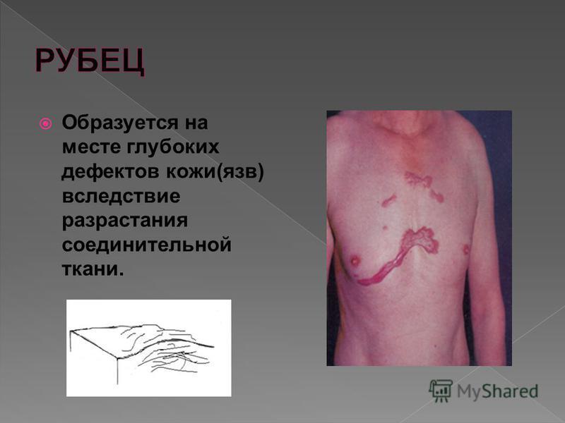 Образуется на месте глубоких дефектов кожи(язв) вследствие разрастания соединительной ткани.