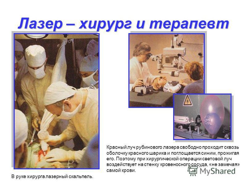 Лазер – хирург и терапевт В руке хирурга лазерный скальпель. Красный луч рубинового лазера свободно проходит сквозь оболочку красного шарика и поглощается синим, прожигая его. Поэтому при хирургической операции световой луч воздействует на стенку кро