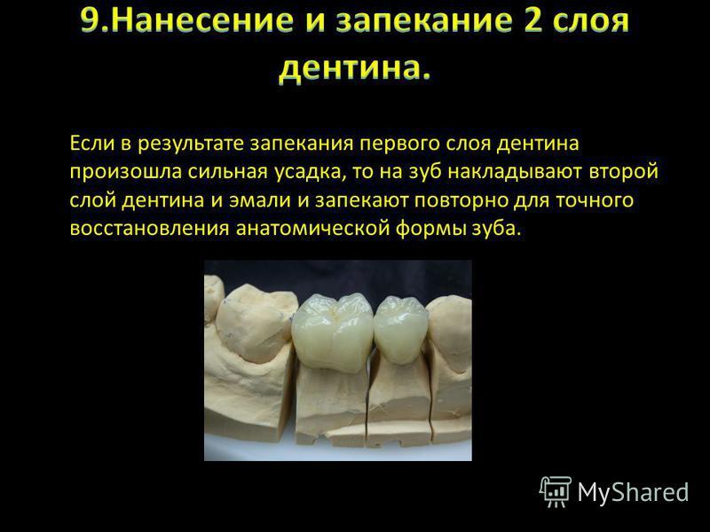 Если в результате запекания первого слоя дентина произошла сильная усадка, то на зуб накладывают второй слой дентина и эмали и запекают повторно для точного восстановления анатомической формы зуба.