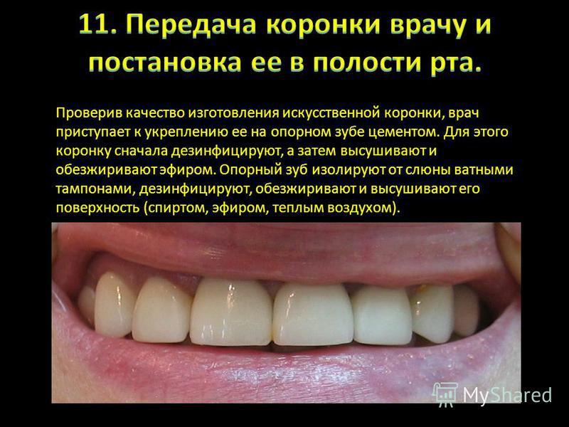 Проверив качество изготовления искусственной коронки, врач приступает к укреплению ее на опорном зубе цементом. Для этого коронку сначала дезинфицируют, а затем высушивают и обезжиривают эфиром. Опорный зуб изолируют от слюны ватными тампонами, дезин