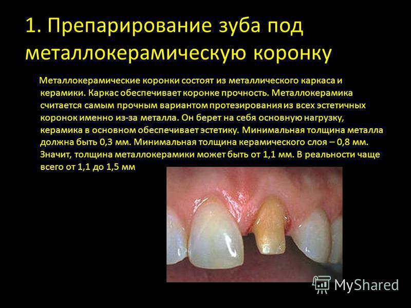 1. Препарирование зуба под металлокерамическую коронку Металлокерамические коронки состоят из металлического каркаса и керамики. Каркас обеспечивает коронке прочность. Металлокерамика считается самым прочным вариантом протезирования из всех эстетичны