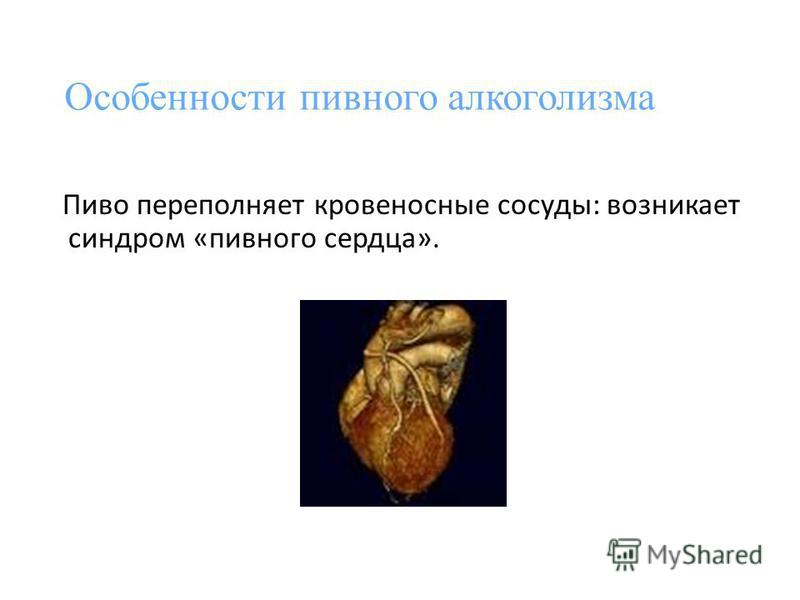 Особенности пивного алкоголизма Пиво переполняет кровеносные сосуды: возникает синдром «пивного сердца».