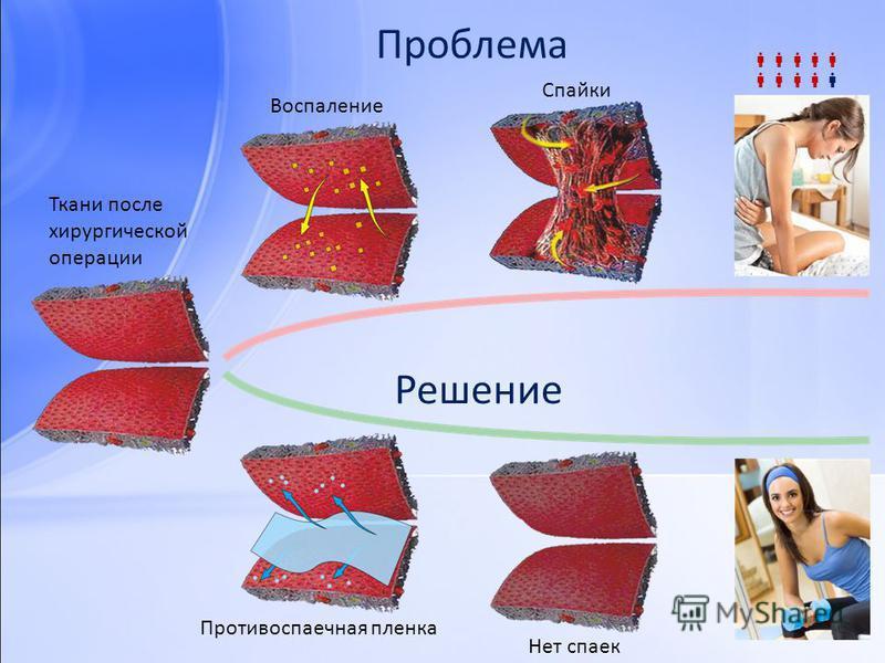 Проблема Воспаление Спайки Противоспаечная пленка Нет спаек Ткани после хирургической операции Решение
