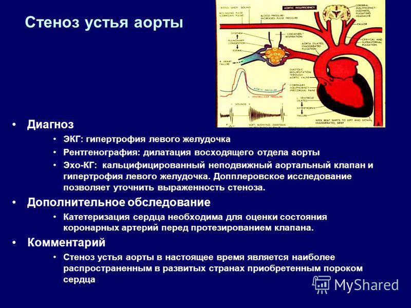 Стеноз устья аорты Диагноз ЭКГ: гипертрофия левого желудочка Рентгенография: дилатация восходящего отдела аорты Эхо-КГ: кальцифицированный неподвижный аортальный клапан и гипертрофия левого желудочка. Допплеровское исследование позволяет уточнить выр