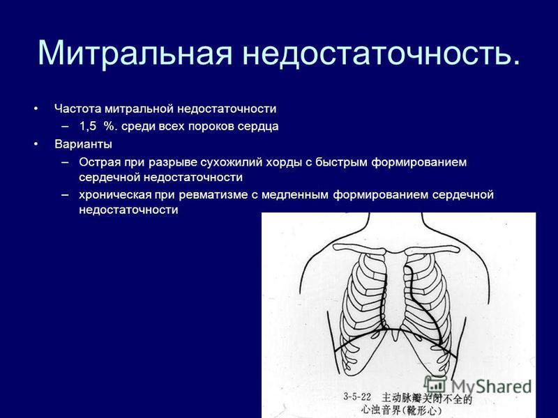 Митральная недостаточность. Частота митральной недостаточности –1,5 %. среди всех пороков сердца Варианты –Острая при разрыве сухожилий хорды с быстрым формированием сердечной недостаточности –хроническая при ревматизме с медленным формированием серд