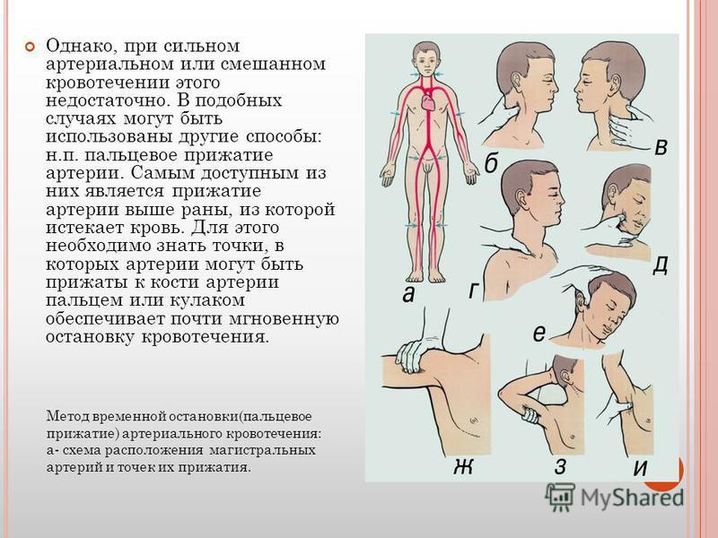 Однако, при сильном артериальном или смешанном кровотечении этого недостаточно. В подобных случаях могут быть использованы другие способы: н.п. пальцевое прижатие артерии. Самым доступным из них является прижатие артерии выше раны, из которой истекае