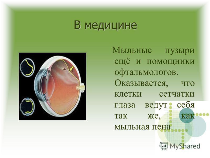 В медицине Мыльные пузыри ещё и помощники офтальмологов. Оказывается, что клетки сетчатки глаза ведут себя так же, как мыльная пена