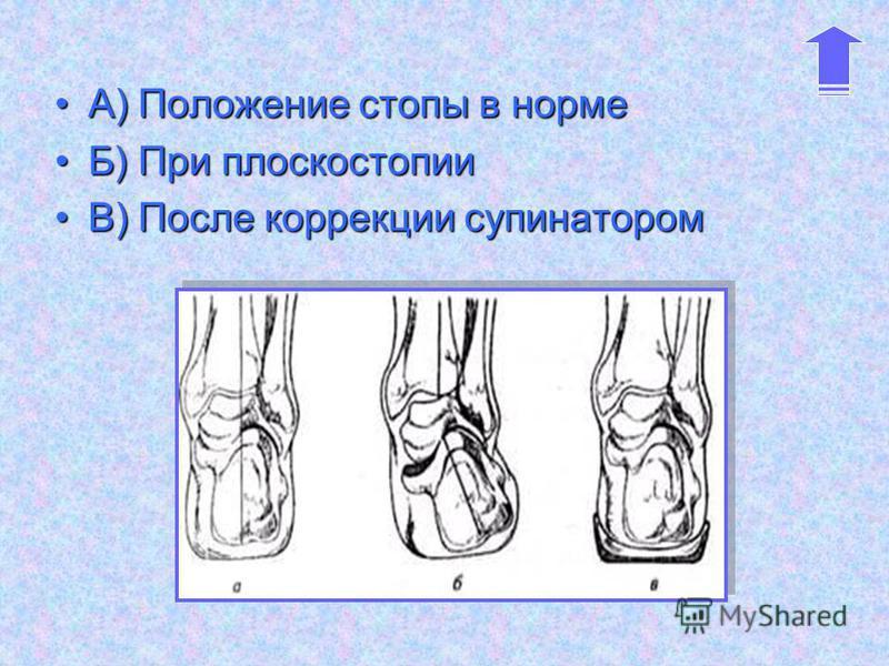 А) Положение стопы в нормеА) Положение стопы в норме Б) При плоскостопииБ) При плоскостопии В) После коррекции супинаторомВ) После коррекции супинатором