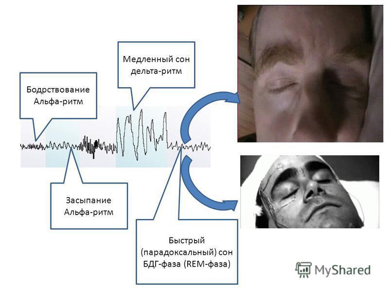 Бодрствование Альфа-ритм Засыпание Альфа-ритм Медленный сон дельта-ритм Быстрый (парадоксальный) сон БДГ-фаза (REM-фаза)