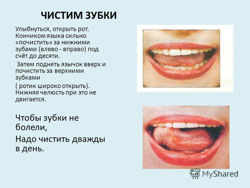 Болит язык как лечить как будто обожгла 93