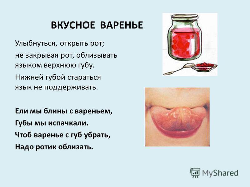 ВКУСНОЕ ВАРЕНЬЕ Улыбнуться, открыть рот; не закрывая рот, облизывать языком верхнюю губу. Нижней губой стараться язык не поддерживать. Ели мы блины с вареньем, Губы мы испачкали. Чтоб варенье с губ убрать, Надо ротик облизать.