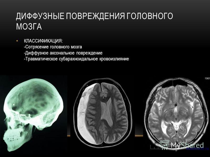 КЛАССИФИКАЦИЯ: -Сотрясение головного мозга -Диффузное аксональное повреждение -Травматическое субарахноидальное кровоизлияние