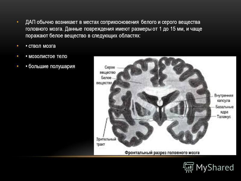 ДАП обычно возникает в местах соприкосновения белого и серого вещества головного мозга. Данные повреждения имеют размеры от 1 до 15 мм, и чаще поражают белое вещество в следующих областях: ствол мозга мозолистое тело большие полушария