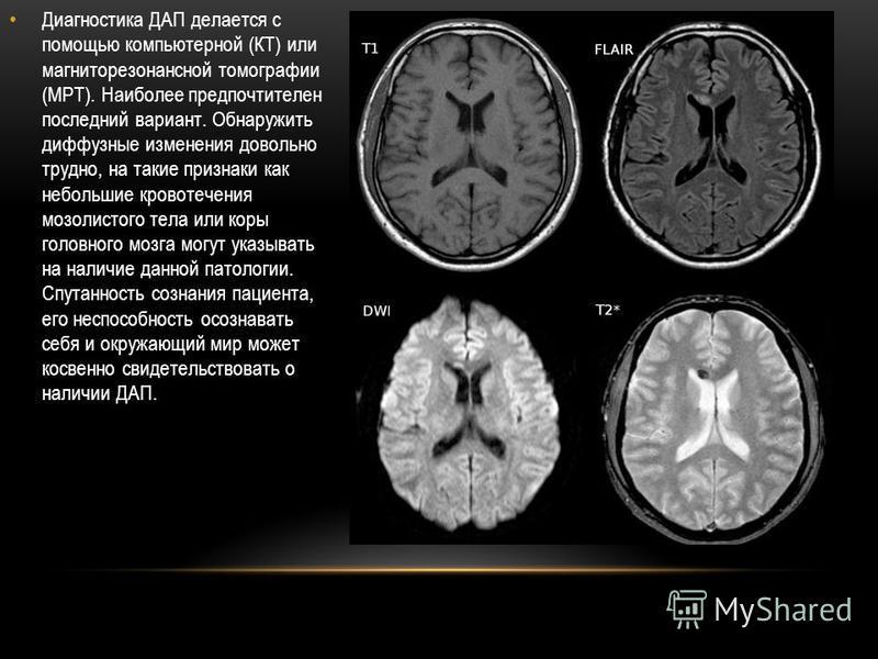 Диагностика ДАП делается с помощью компьютерной (КТ) или магниторезонансной томографии (МРТ). Наиболее предпочтителен последний вариант. Обнаружить диффузные изменения довольно трудно, на такие признаки как небольшие кровотечения мозолистого тела или