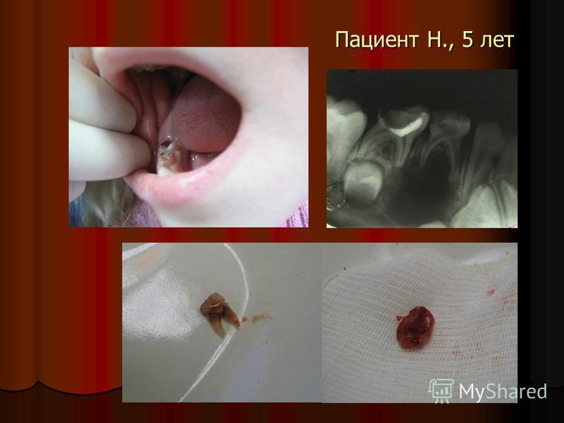 Пациент Н., 5 лет