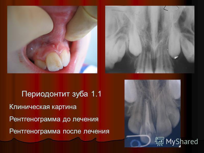 Периодонтит зуба 1.1 Клиническая картина Рентгенограмма до лечения Рентгенограмма после лечения