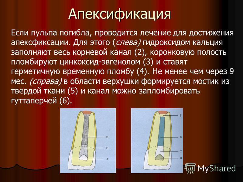 Апексификация Если пульпа погибла, проводится лечение для достижения апексфиксации. Для этого (слева) гидроксидом кальция заполняют весь корневой канал (2), коронковую полость пломбируют цинкоксид-эвгенолом (3) и ставят герметичную временную пломбу (
