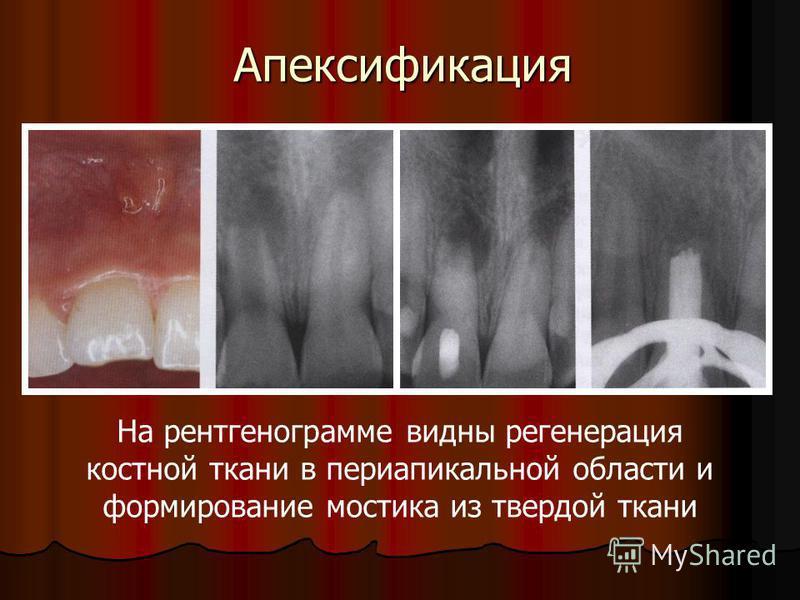 Апексификация На рентгенограмме видны регенерация костной ткани в периапикальной области и формирование мостика из твердой ткани