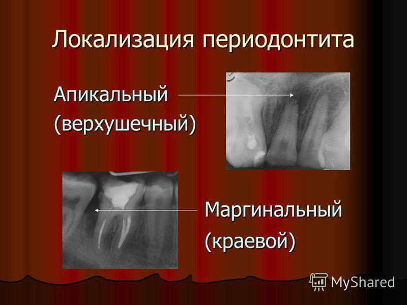 Локализация периодонтита Апикальный(верхушечный) Маргинальный (краевой)