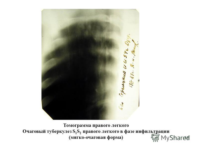 13 Томограмма правого легкого Очаговый туберкулез S 1 S 2 правого легкого в фазе инфильтрации (мягко-очаговая форма)