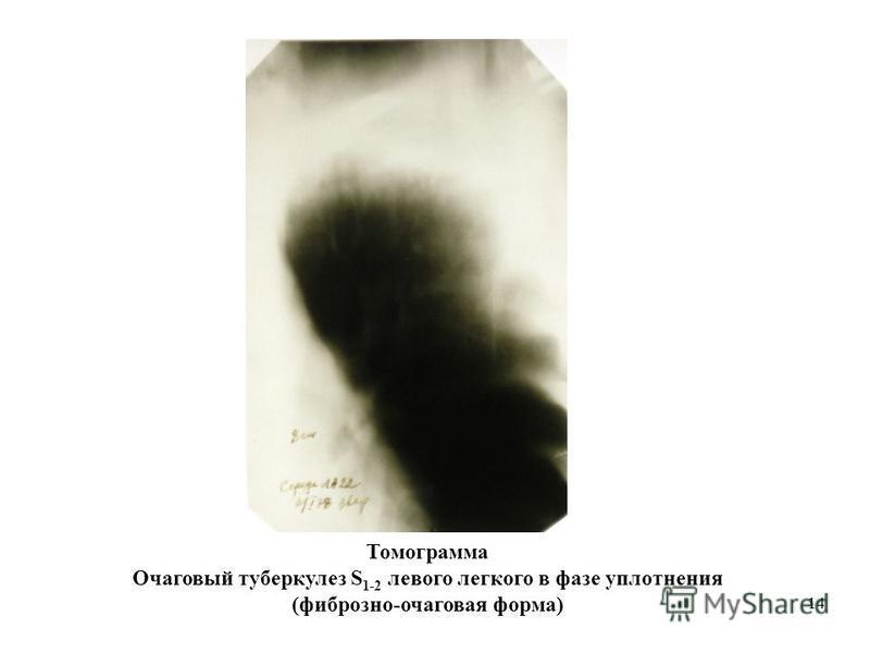 14 Томограмма Очаговый туберкулез S 1-2 левого легкого в фазе уплотнения (фиброзно-очаговая форма)