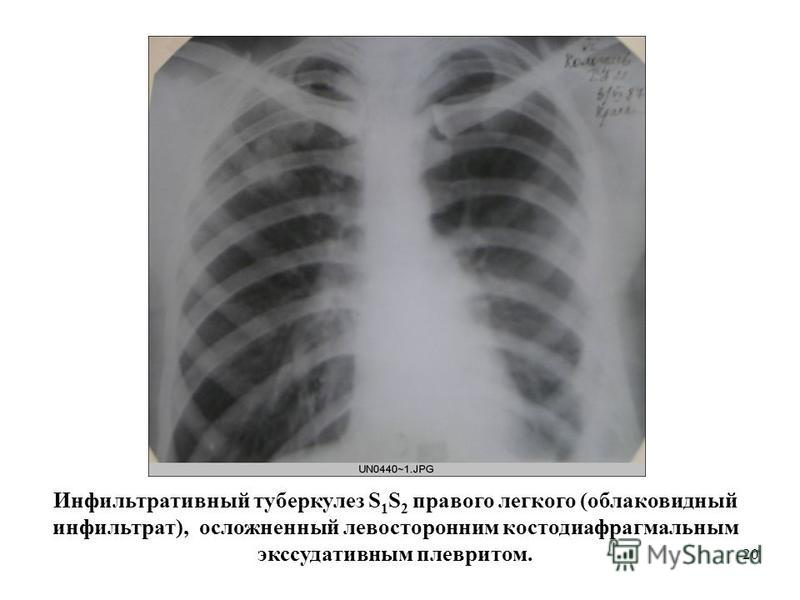 20 Инфильтративный туберкулез S 1 S 2 правого легкого (облако видный инфильтрат), осложненный левосторонним костодиафрагмальным экссудативным плевритом.