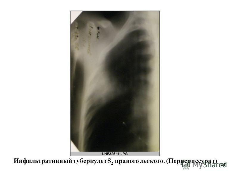 21 Инфильтративный туберкулез S 2 правого легкого. (Перисциссурит)