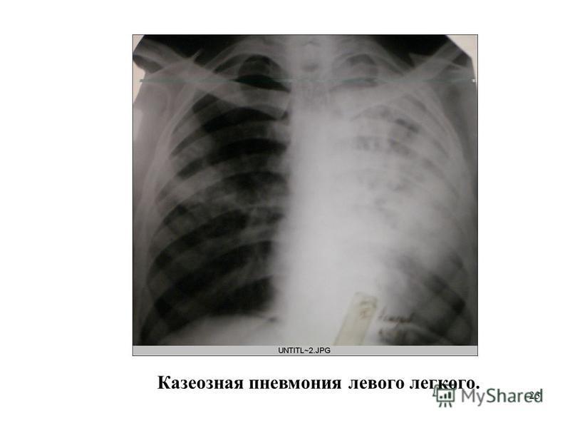 23 Казеозная пневмониия левого легкого.