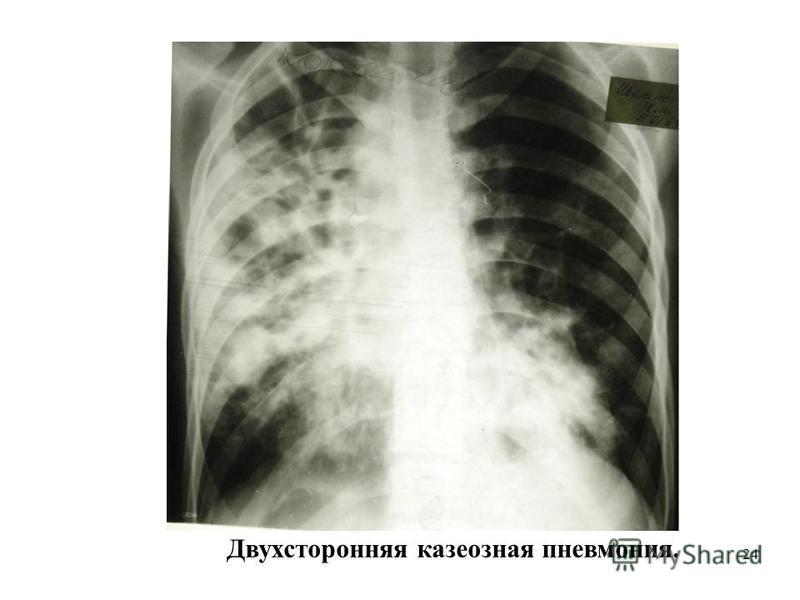 24 Двухсторонняя казеозная пневмониия.