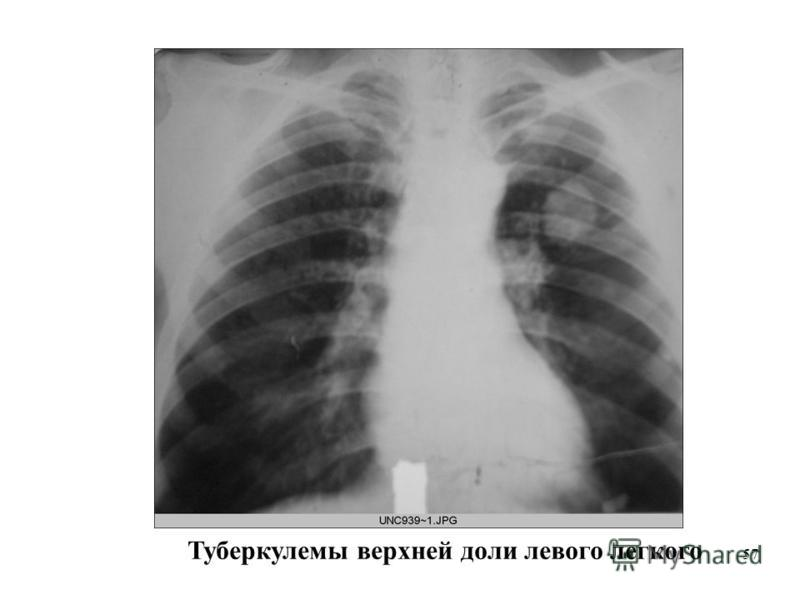 57 Туберкулемы верхней доли левого легкого