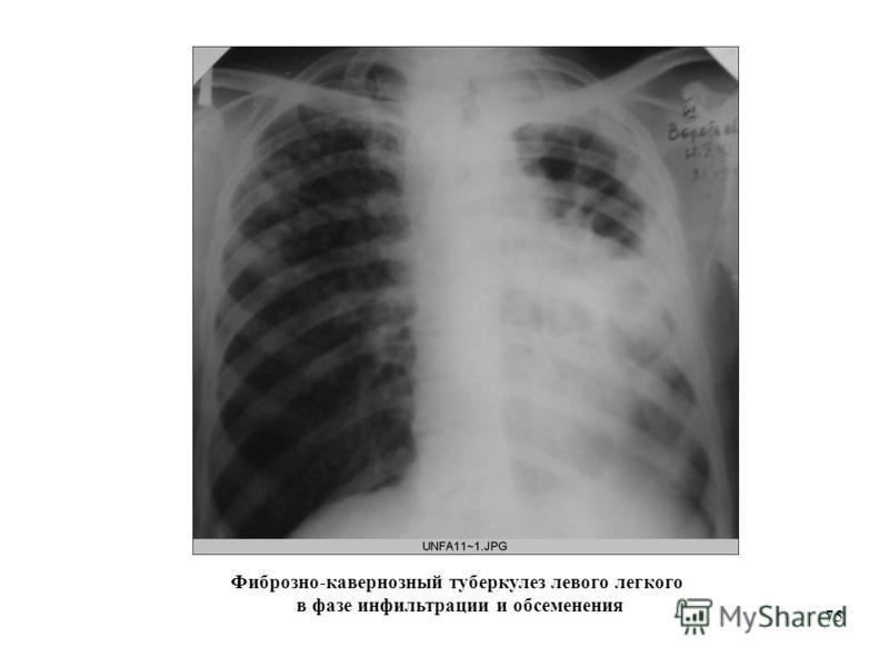 75 Фиброзно-кавернозный туберкулез левого легкого в фазе инфильтрации и обсеменения