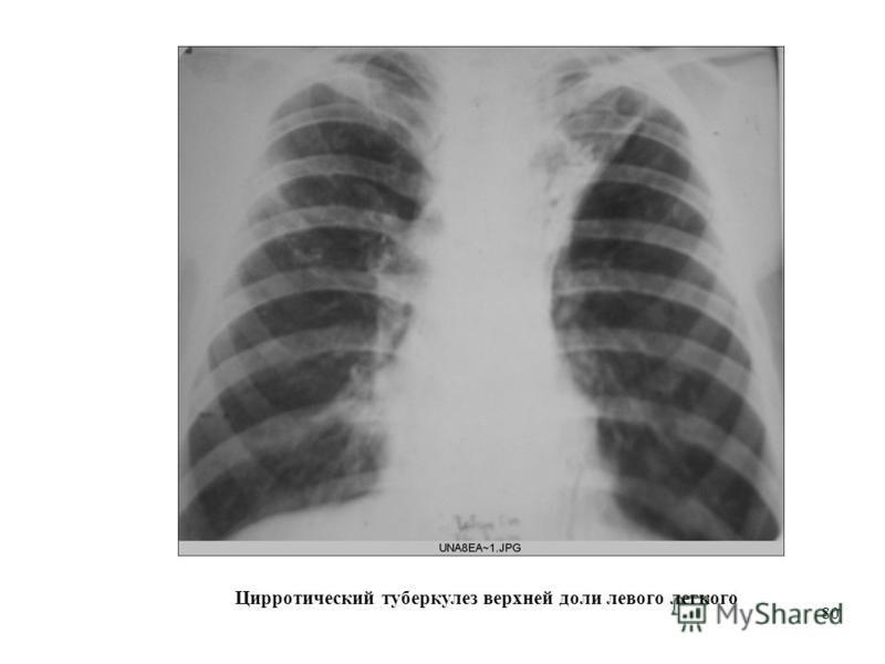 80 Цирротический туберкулез верхней доли левого легкого