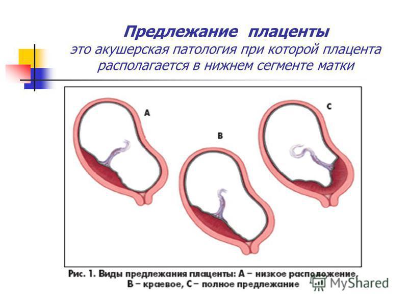 Предлежание плаценты это акушерская патология при которой плацента располагается в нижнем сегменте матки