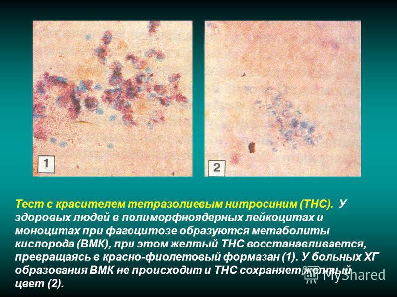 Тест с красителем тетразолиевым нитро синим (ТНС). У здоровых людей в полиморфно ядерных лейкоцитах и моноцитах при фагоцитозе образуются метаболиты кислорода (ВМК), при этом желтый ТНС восстанавливается, превращаясь в красно-фиолетовый фармазон (1).