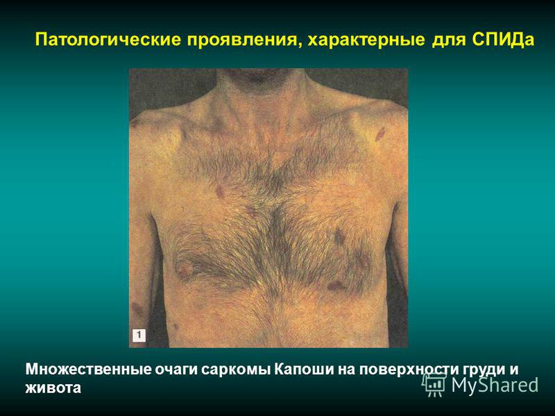 Патологические проявления, характерные для СПИДа Множественные очаги саркомы Капоши на поверхности груди и живота