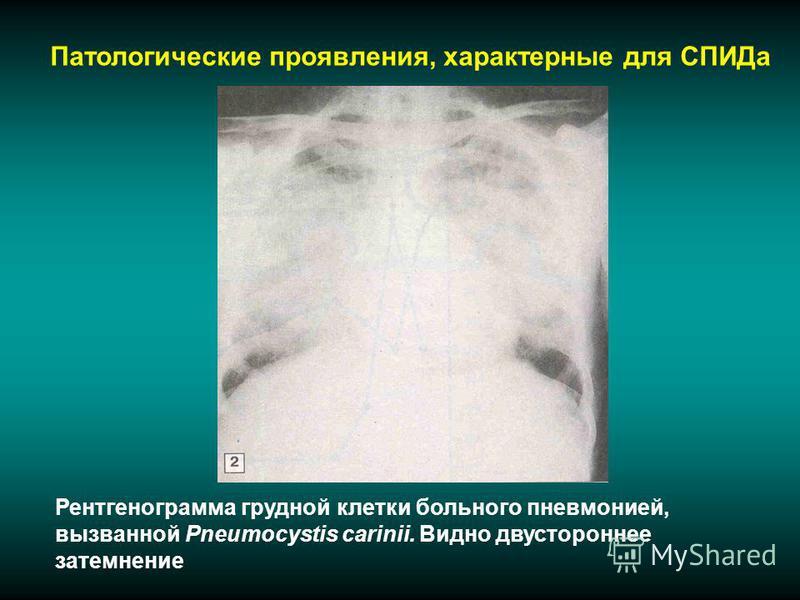 Патологические проявления, характерные для СПИДа Рентгенограмма грудной клетки больного пневмонией, вызванной Pneumocystis carinii. Видно двустороннее затемнение