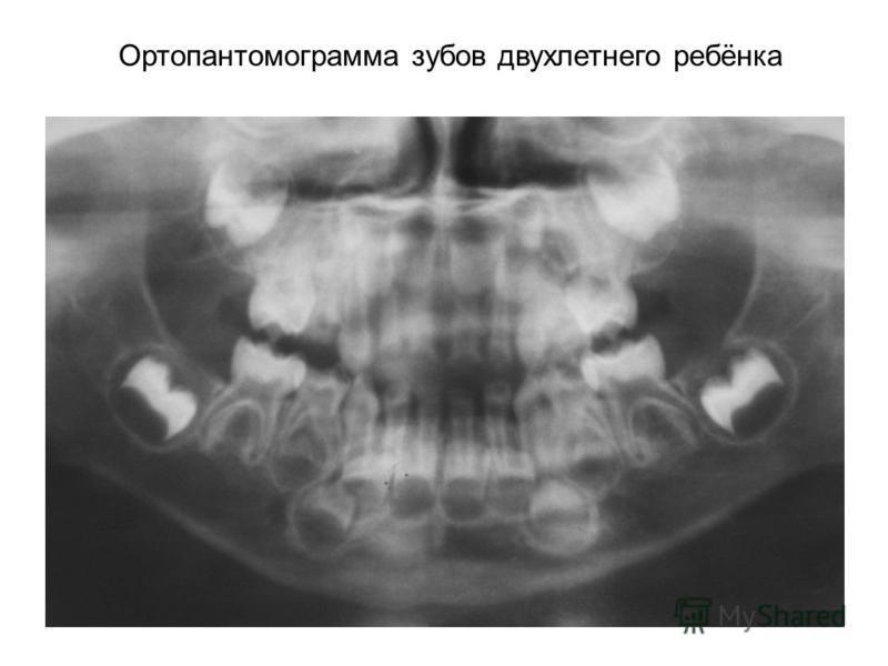 Ортопантомограмма зубов двухлетнего ребёнка