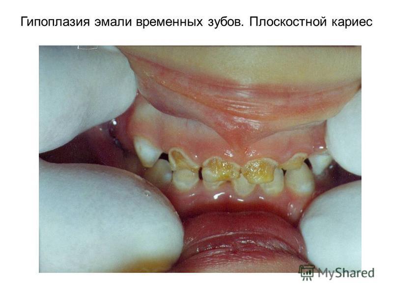 Гипоплазия эмали временных зубов. Плоскостной кариес