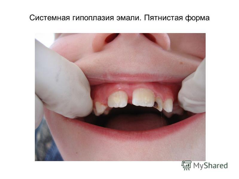 Системная гипоплазия эмали. Пятнистая форма