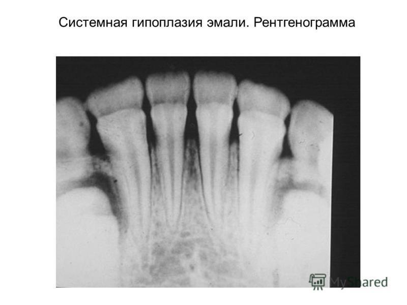 Системная гипоплазия эмали. Рентгенограмма