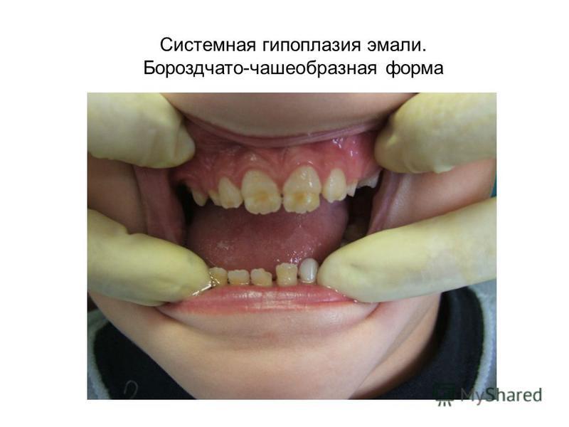 Системная гипоплазия эмали. Бороздчато-чашеобразная форма