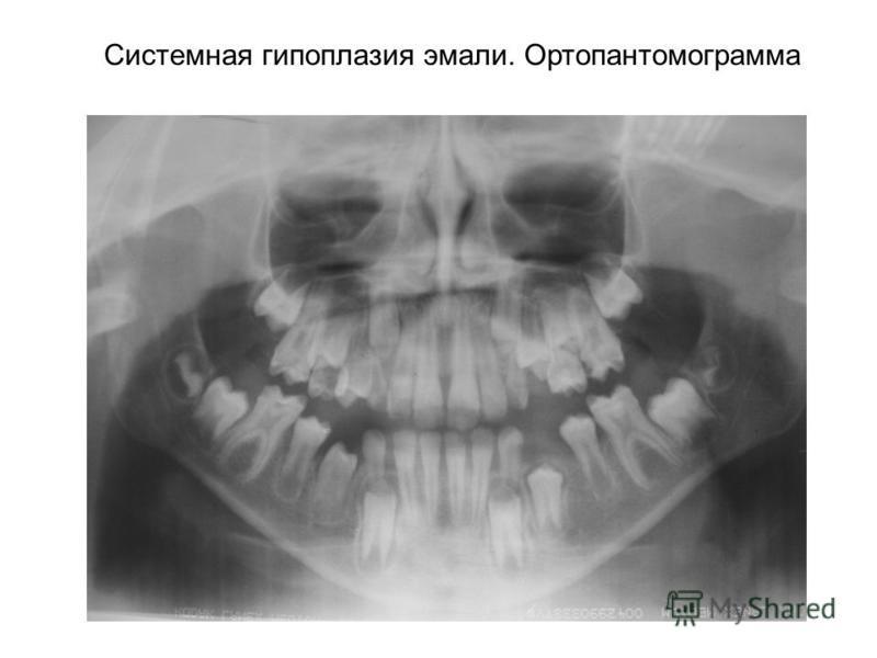 Системная гипоплазия эмали. Ортопантомограмма