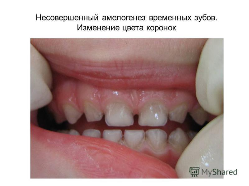 Несовершенный амелогенез временных зубов. Изменение цвета коронок